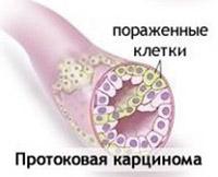 Инвазивная протоковая карцинома молочной железы