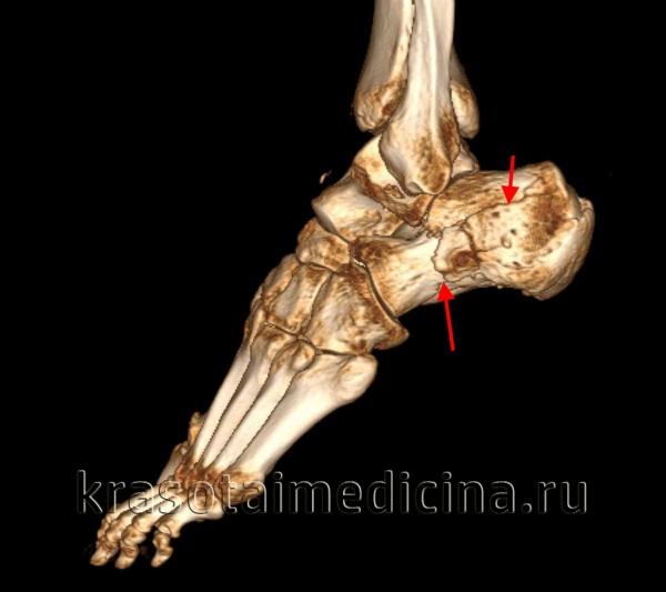 КТ стопы (3D реконструкция). Оскольчатый перелом пяточной кости с разнонаправленным смещением осколков.