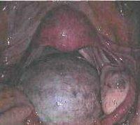 Что такое фиброма яичника