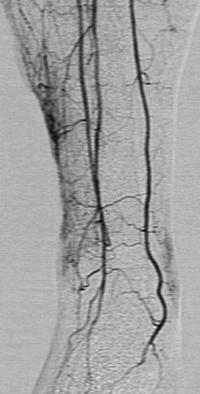 Артериофлебограмма. Артериовенозный сброс. Депонирование крови в мелких поверхностных венах