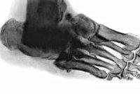 Процедура Рентгенография стопы