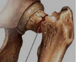 Перелом шейки бедра в пожилом возрасте: методы лечения, реабилитация и последствия перелома со смещением