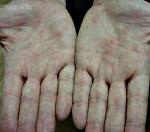 Иерсиниоз: симптомы и лечение у взрослых и детей