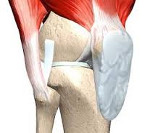 Изображение - Контрактура коленного сустава лечение 8958830d4a6c48dc98dad7547cd5749c