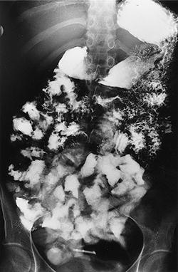 Рентгеноконтрастное изображение кишечника больного целиакией