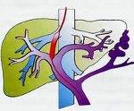 Хирургическое лечение портальной гипертензии