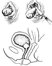 Доброкачественные опухоли уретры