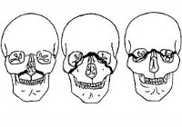 Перелом верхней челюсти