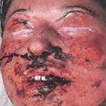 Эпидермальный некролиз синдром лайелла 22