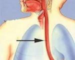 Ожоги в пищеводе после лучевой терапии