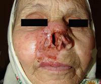 Язвенный туберкулез кожи