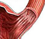 Пищеводно-желудочные кровотечения при синдроме Мэллори-Вейсса