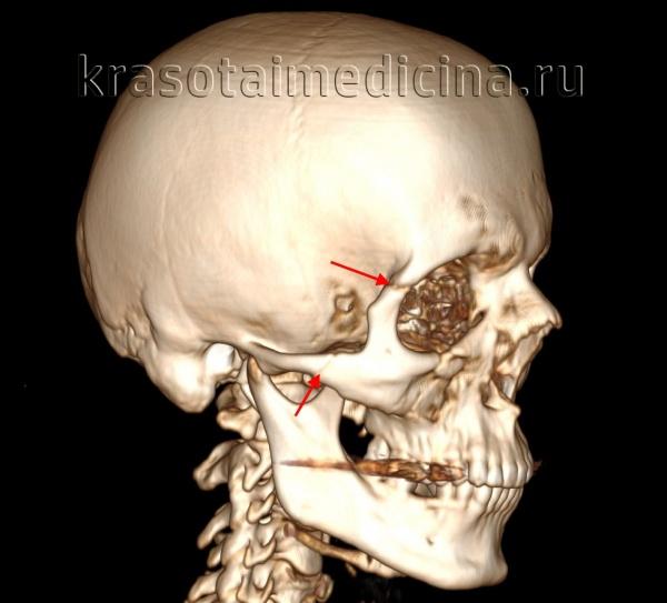 КТ головы (3D-реконструкция). Перелом лицевого черепа (скуловой дуги) и перелом в области лобно-скулового шва.