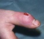Гнойный и септический артрит симптомы и лечение