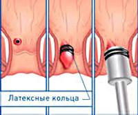 Процедура Латексное лигирование геморроидального узла