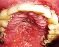 ВИЧ-инфекция полости рта