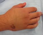 Что делать при переломе ладьевидной кости запястья