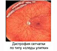 Периферическая дистрофия сетчатки