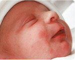 Токсическая эритема новорожденных: причины, симптомы и лечение