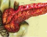 Реактивные изменения поджелудочной железы у ребенка: что это такое и как проявляется?