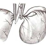 Хирургическая ножка кисты яичника 8
