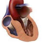 Гипертрофическая кардиомиопатия и ее последствия