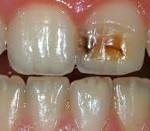 Некариозные поражения зубов после прорезывания. Список болезней, которые характерны для некариозных поражений зубов