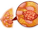 Аденоматоз молочной железы - Wom-a-Health