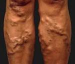 Варикоз на ногах: причины, симптомы, профилактика
