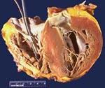 Ишемическая кардиомиопатия что это такое причина