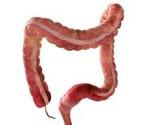Сигмоидит – причины, симптомы, лечение