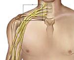 Плексит плечевого сустава симптомы лечение диагностика и профилактика