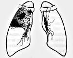 Инфильтративный туберкулез легких лечение сроки лечения