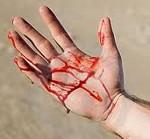 Виды кровотечений внутреннее и наружное