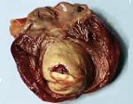 Чем опасна аневризма сердца и как она лечится