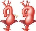 Что такое аневризма сердца и чем она опасна? Причины, симптомы, диагностика и лечение