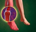 Диабетическая макроангиопатия нижних конечностей