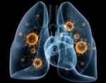 Пневмония это вирусное или бактериальное заболевание