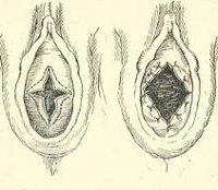 Атрезия девственной плевы