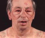 Анафилактический шок симптомы причины неотложная помощь