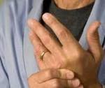 Вирусный артрит симптомы и лечение