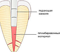Процедура Пломбирование корневого канала
