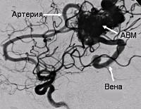 Артериовенозные мальформации головного мозга