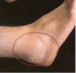 Бурсит стопы причины симптоматика лечение профилактика