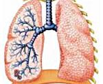 Пневмония у детей – симптомы, лечение, прививка, признаки, причины