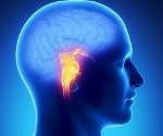Инсульт ствола головного мозга (стволовой инсульт): причины, симптомы и диагностика. Лечение в Москве по низким ценам