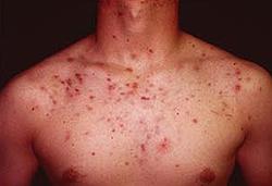 Узловатокистозные угри (acne nodulocystica)