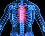 Межреберный радикулит лечение - Все про суставы
