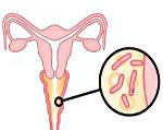 Хронический бактериальный вагиноз — проявление и лечение