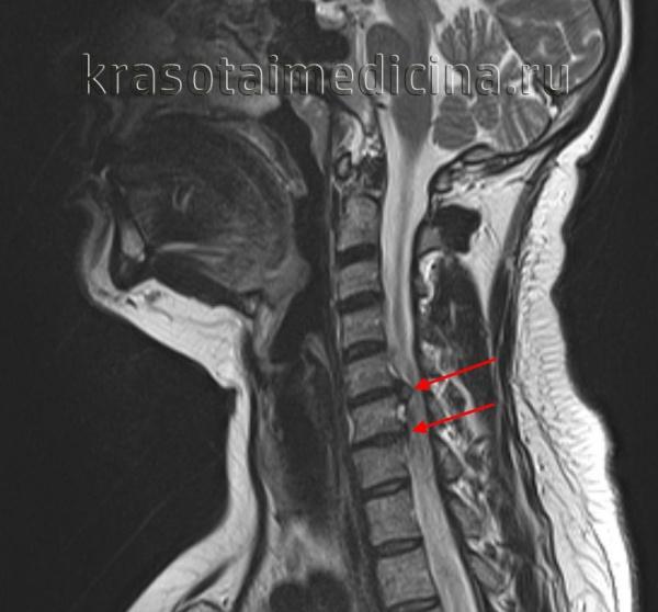 МРТ ШОП. Грыжевые выпячивания дисков в с. С5-С6, С6-С7 кзади, с выраженным сужением позвоночного канала и сдавлением спинного мозга.